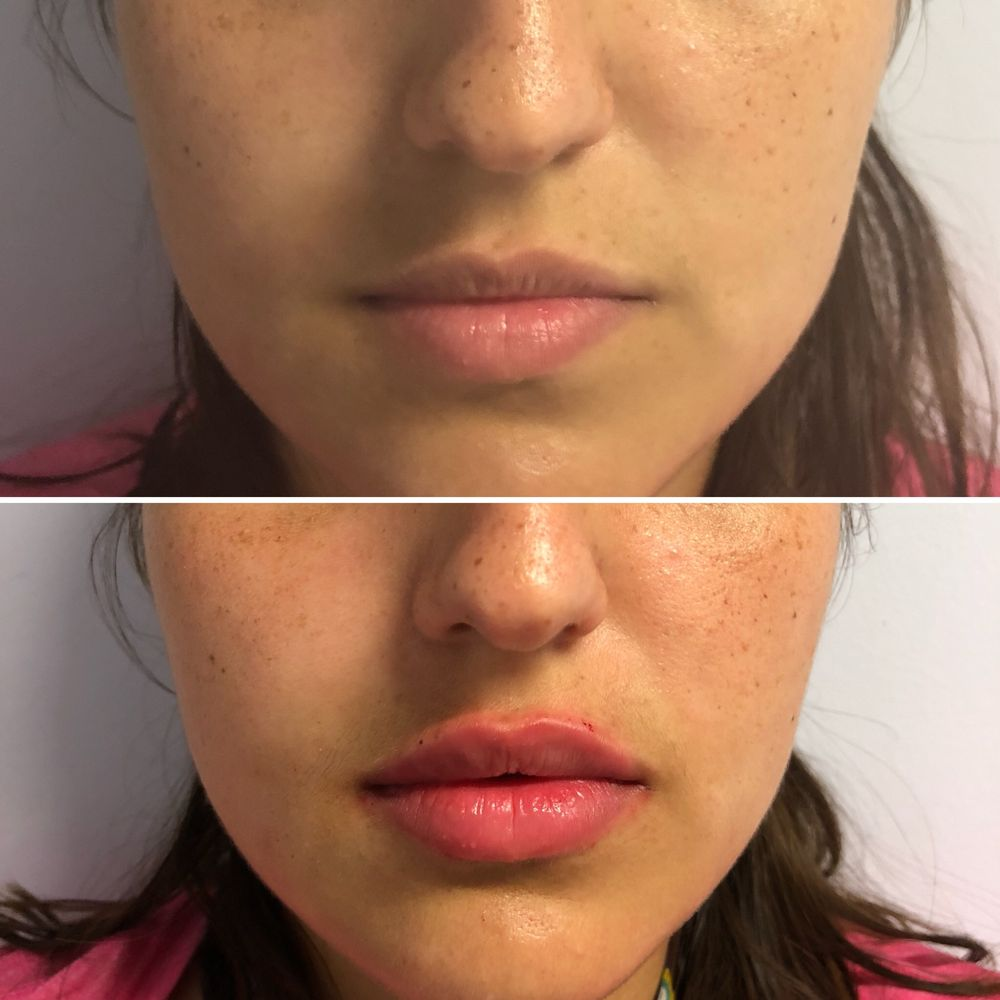 Juvederm - Lip Injections - Yelp