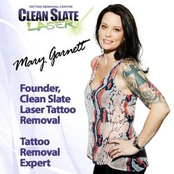 Clean Slate Laser Tattoo Removal - Wayne - Tattoo Removal - 246 ...