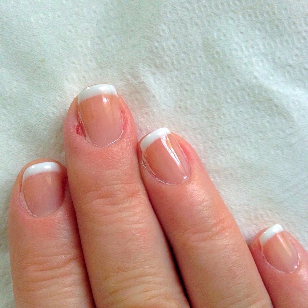 My cuticles we\'re cut & my left with sore & very sensitive fingers ...