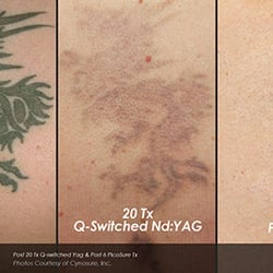 Laser Tattoo Removal Hawaii - 22 Photos - Tattoo Removal - 1401 S ...