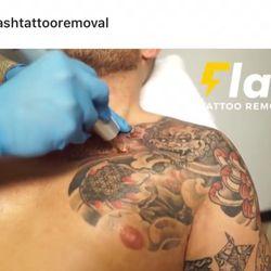 Flash Tattoo Removal - Tattoo Removal - 1530 9 Avenue SE, Calgary ...