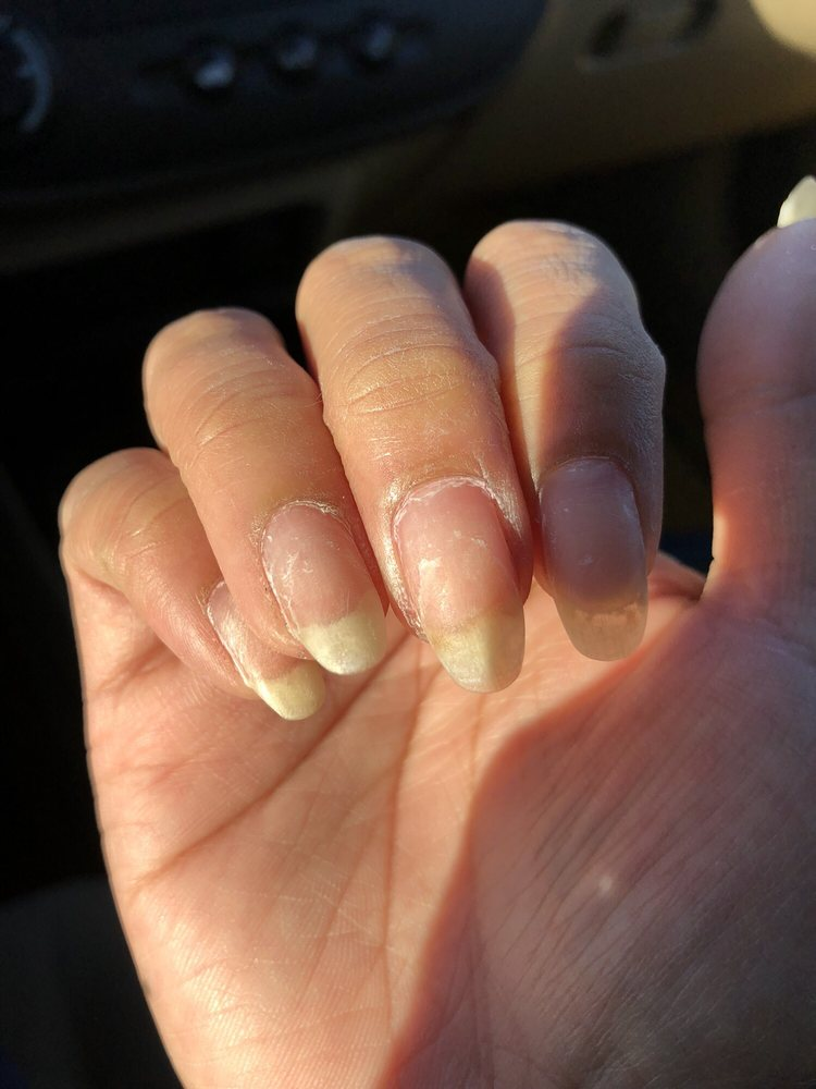 Dry ass, crusty nails, no cuticle oil at all. Horrible, shi**y ...
