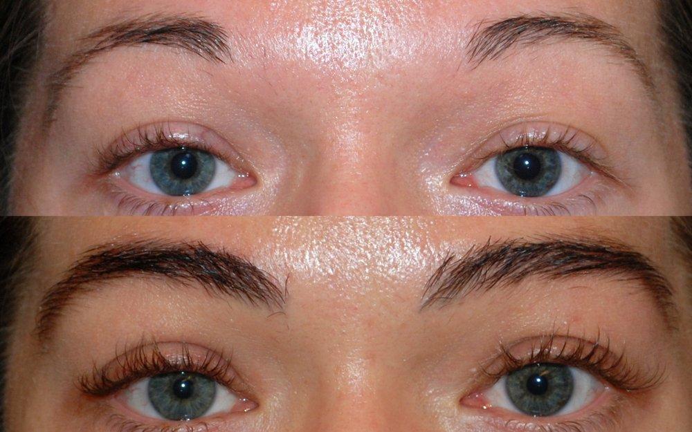 Eyebrow Restoration Yelp