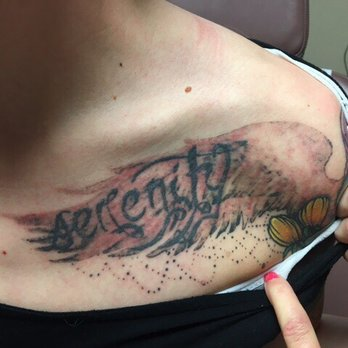 Phoenix tattoo removal and skin revitalization 20 photos for Tattoo removal az