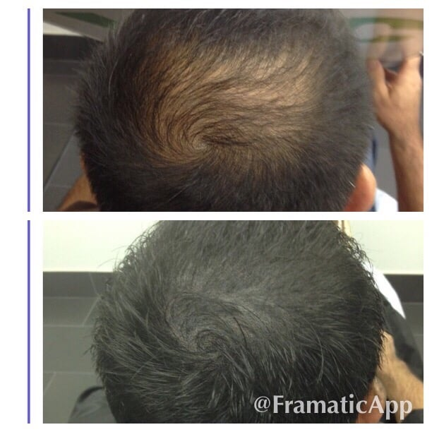 Thinning Hair At Crown Area Smp Density Work Done Yelp